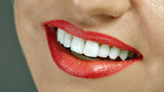 5 Things to Know About Home Teeth Whitening