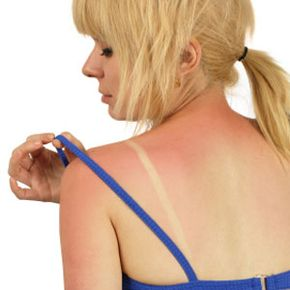 Getting Beautiful Skin Image Gallery Protective clothing that covers a lot of skin is one way to prevent sunburn. See more pictures of getting beautiful skin.