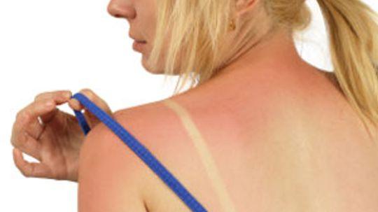 How to Prevent Sunburn