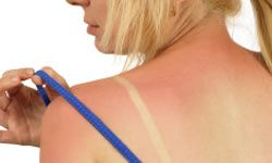 Dust cornstarch on burn spots to ease chafing.