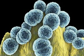 Methicillin-resistant Staphylococcus aureus (MRSA) can cause wound infections, pneumonia and blood poisoning in vulnerable people.