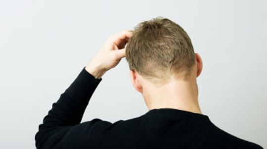 Itchy Scalp Causes and Treatments