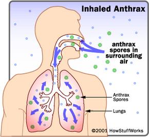 Inhaled anthrax