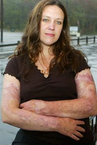 Paula Arpin's arms were burned and scarred after a 2003 nightclub fire. See more modern medicine pictures.