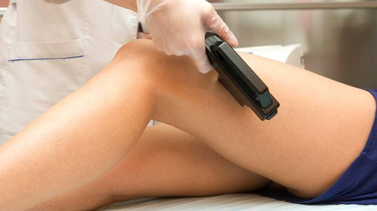 How Long Does Laser Hair Removal Last?
