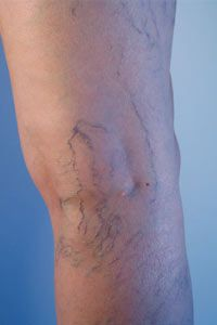 Some lifestyle changes, like exercise, may help alleviatespider veins. See more pictures of skin problems.