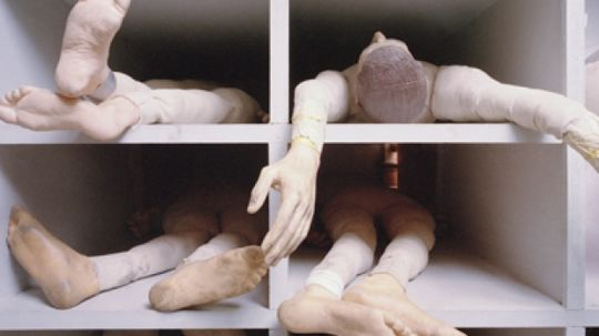 What makes your arms, legs and feet fall asleep?