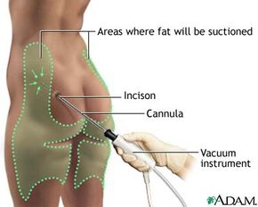 During the surgery, the doctor makes a small incision (or several small incisions) and inserts the cannula into the fat layers of the targeted areas.