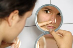 Many physicians take the psychological effects of breakouts just as seriously as the physical effects.
