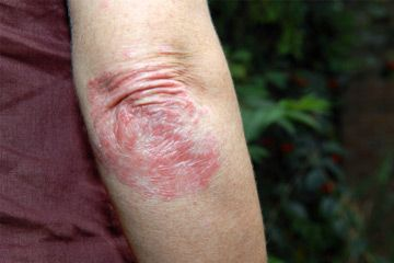 Painful and itching skin condition.