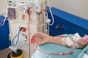 In a method similar to kidney dialysis treatment, the plasmapheresis procedure removes autoantibodies, contained in plasma, from blood.