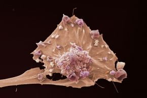 Breast cancer cells at 3,000 times magnification.