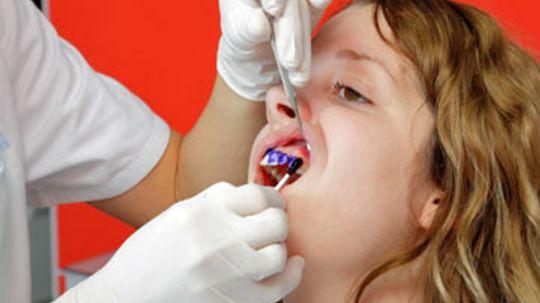 Professional Fluoride Treatment