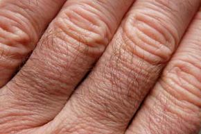 Skin Problems Image Gallery Ceramides are lipids found in the outermost skin layer called the stratum corneum, which is composed of dead skin cells and serves as a physical barrier. See more pictures of skin problems.