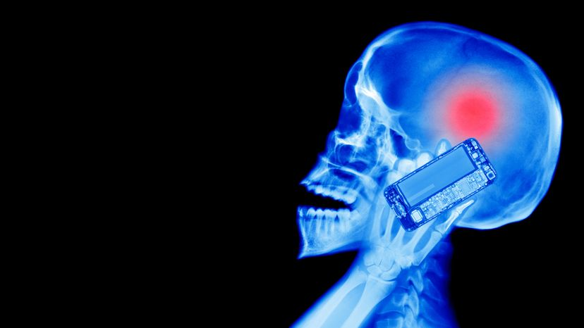 X-ray of Human Using a Cell Phone with Brain Tumor Caused by Radiation