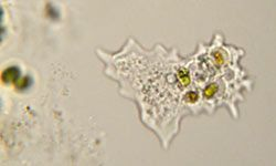 Many amoebas are utterly harmless, but their microscopic size makes it easy for both harmful and benign ones to invade the human body without detection.