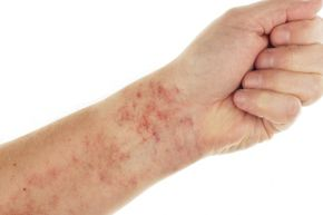 If it turns white when you touch it, your rash most likely does not merit a rush trip to a doctor.