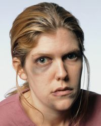 Women who've endured abuse to the face can fix that damage as they begin to fix their lives.