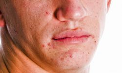 Acne scars can last long after the pimple disappears. See more pictures of skin problems.