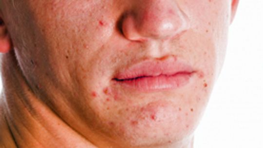 5 Tips for Reducing Acne Scars