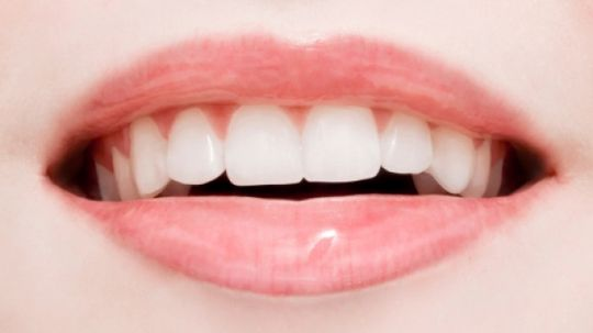 5 Odd Health Benefits of Brushing Your Teeth