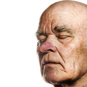 Rhinophyma, a progression of acne rosacea,is characterized by a red and bulbous nose. See more pictures of skin problems.