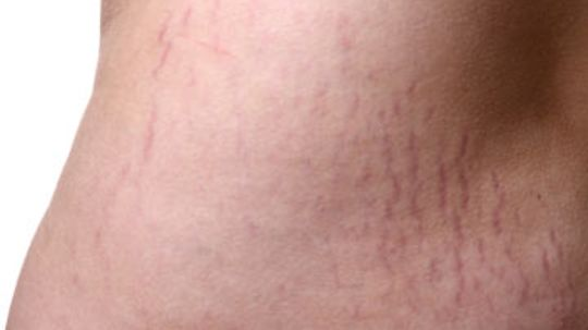 Can you get rid of stretch marks?