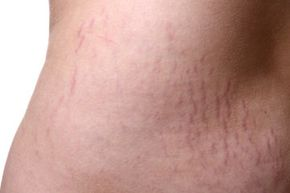 Skin Problems Image Gallery Stretch marks often look something like this. See more pictures of skin problems.