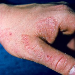 Tinea manus, a fungal infection. See more pictures of skin problems.