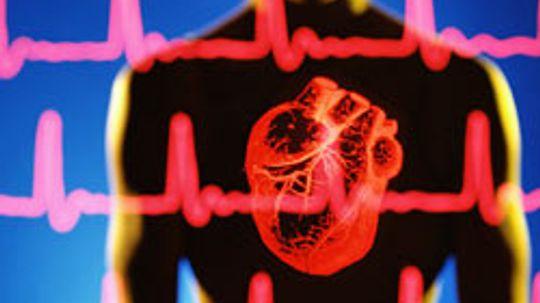 Coronary Heart Disease 101