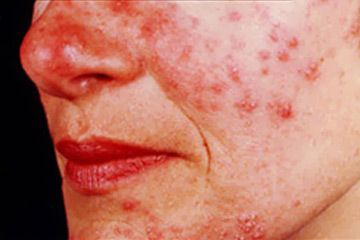 Rosacea is a chronic inflammation of the skin causing redness in the face and produces small, red, pus-filled bumps or pustules.