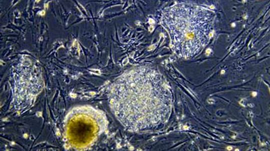 What are stem cells and what are they used for?