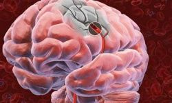 This rare genetic disorder causes multiple strokes.