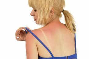 Antibiotics like tetracyclines and fluoroquinolones can be phototoxic, which can result in a massive and painful sunburn.