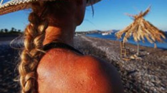 Cooling the Burn: Sunburn Home Remedies Image Gallery