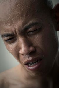 Excessive sweating on the face is normal when the temperature is high or during exercise.