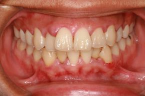 Gums causing you discomfort? A home remedy could do the trick.