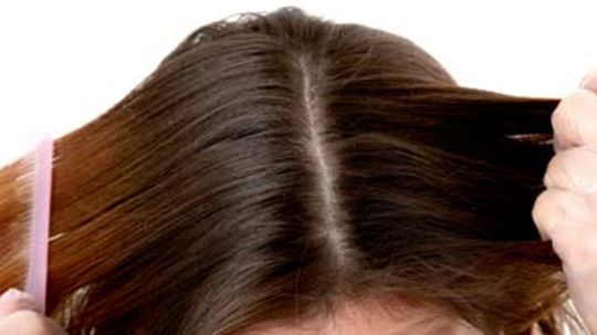 Does my scalp affect the way my hair looks?
