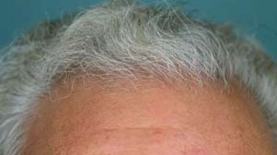 Is the scalp different from other skin?
