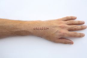 Scars often leave visible marks, but there are ways to treat them and lessen their appearance. See more pictures of skin problems.