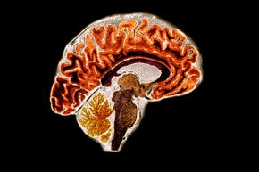 Brain scans display how active our brains really are, flickering with constant activity as our 100 billion nerve cells ceaselessly fire.