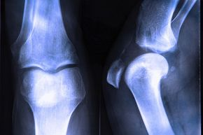 Want to keep your bones strong and healthy? Engage in weight-bearing exercises such as walking and strength training, and cut back on the sitting.