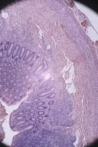 What skin cancer looks like under the microscope. See more pictures of skin problems.