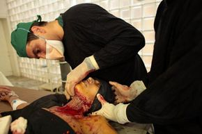 A doctor performs a skin graft operation on a self-immolation victim in Afghanistan.