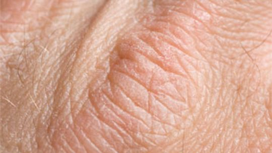 What causes skin moisture loss?