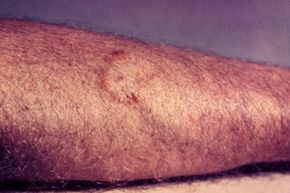A ringworm rash is typically itchy, scaly and spreads outward.