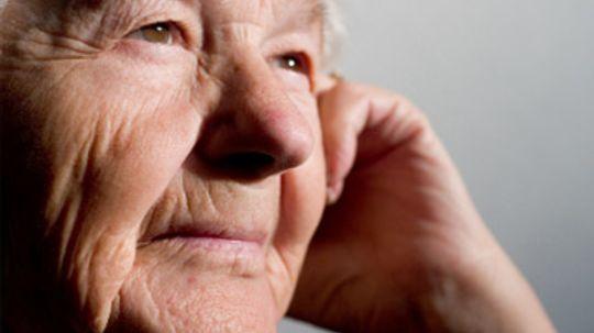 Skin Wrinkles Overview