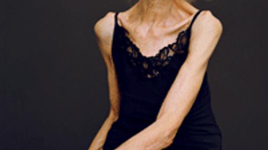 Do skinny people get more wrinkles?