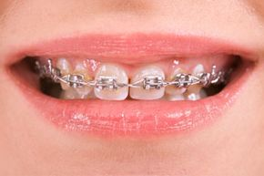Advances in orthodontics mean that braces these days are less painful and don't have to be worn as long.