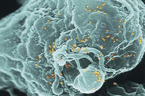 The colored spheres on this scanning electron micrograph represent HIV-1 particles, co-cultivated with human lymphocytes in white blood cells. Researchers found that microgravity seems to interfere with T-cell activation as badly as acquiring HIV.